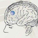 La formazione delle professionalità nella gestione dell'ictus cerebrale e delle sue complicanze è il primo passo per una buona pratica clinica. Il corso